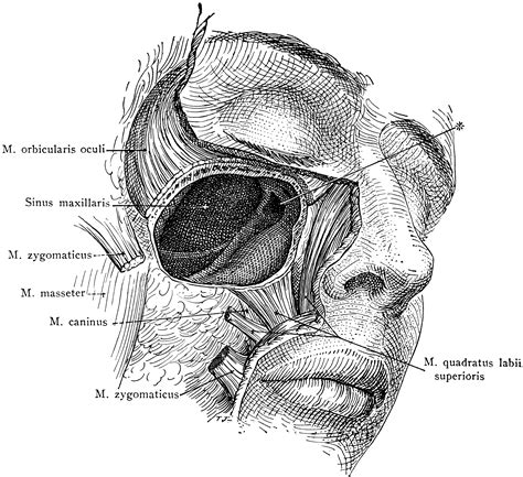 Dissection of the Maxillary Sinus | ClipArt ETC