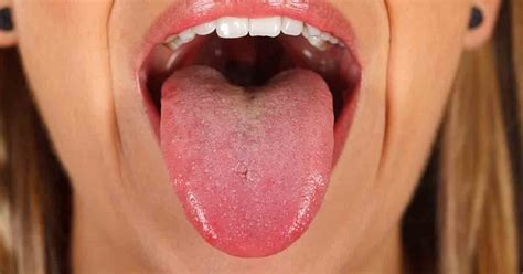 9 Fascinating Insights Your Tongue May Reveal About Your