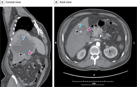 Acute Calculous Cholecystitis With Intrahepatic