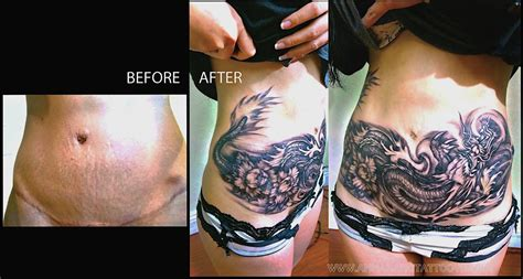 COVER UP - Gallery - Anna Hang Tattoo